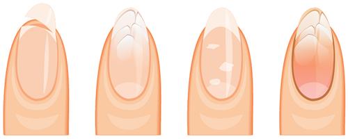 化学療法による爪の障害